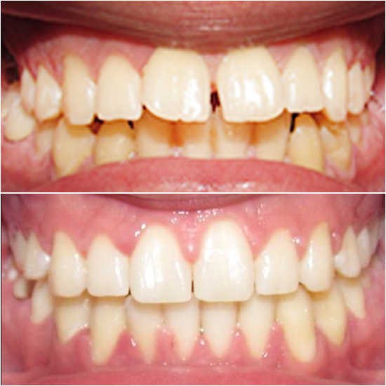 TruSmile Ortho Before and After Orthodontic Treatment